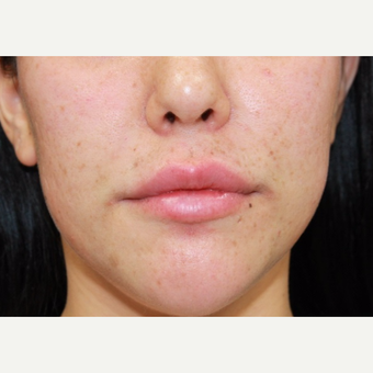 27 year old woman treated with Juvederm to lips and nasolabial folds after 3059597