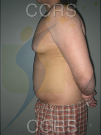 VASER Lipo - 28 yrs. old male (abdomen, back & chest) 636089