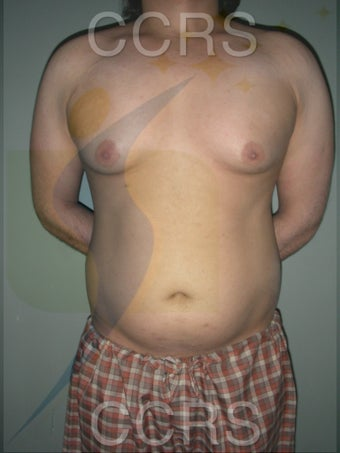 VASER Lipo - 28 yrs. old male (abdomen, back & chest) before 636089