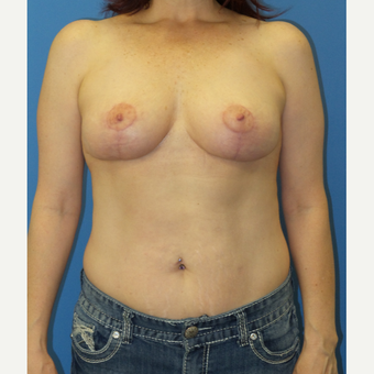 45-54 year old woman treated with Breast Lift after 2998967