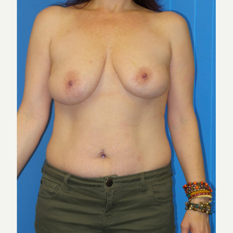 45-54 year old woman treated with Breast Lift before 2998967