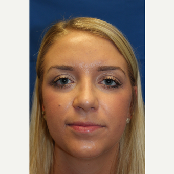 18-24 year old woman treated with Rhinoplasty after 3643301