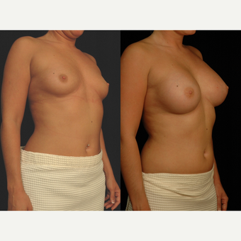 25-34 year old woman treated with Breast Augmentation after 3658573