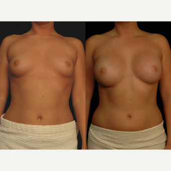 25-34 year old woman treated with Breast Augmentation before 3658573