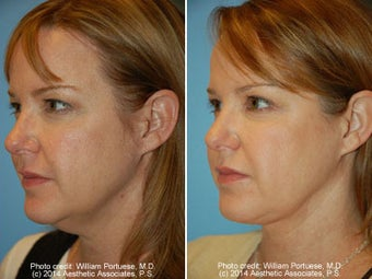 Neck Liposuction before 1389490
