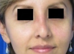 Eyelid Surgery after 3168641