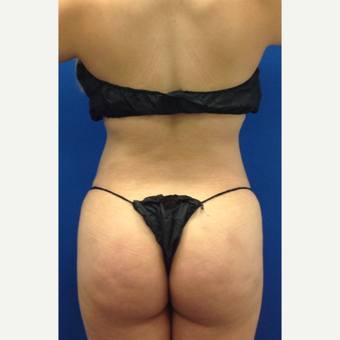 35-44 year old woman treated with Liposuction after 3220693