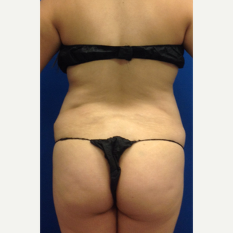 35-44 year old woman treated with Liposuction before 3220693