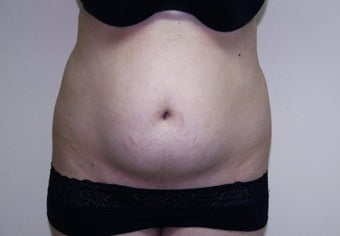 Liposculpture on abdominal fat before 88870