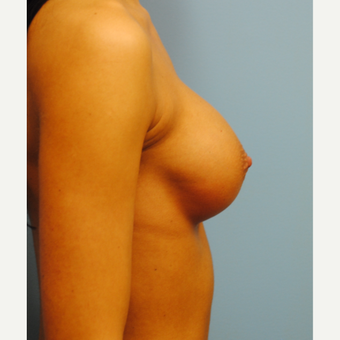 27 year old who had a breast augmentation.   300 cc high profile .  A to full B cup. after 3304348