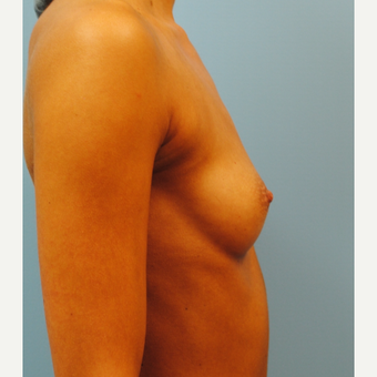 27 year old who had a breast augmentation.   300 cc high profile .  A to full B cup. before 3304348