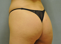 Woman treated with Butt Augmentation