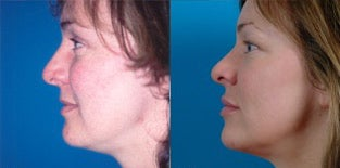 36-year-old woman treated with Facial Fat Transfer. after 3282125