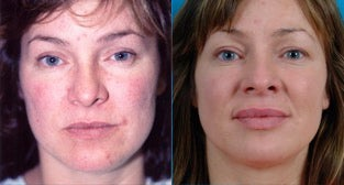 36-year-old woman treated with Facial Fat Transfer. before 3282125