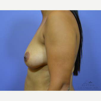 25-34 year old woman treated with Breast Augmentation before 3329378