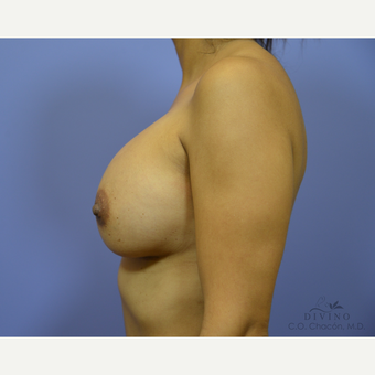 25-34 year old woman treated with Breast Augmentation after 3329378