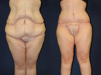29 year old woman treated for excess skin following weight loss before 1251777