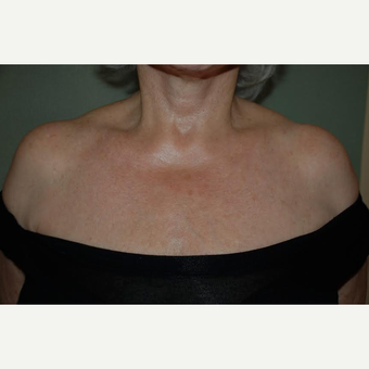 65-74 year old woman treated with IPL