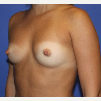 18-24 year old woman treated with Breast Augmentation before 3664176