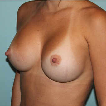 18-24 year old woman treated with Breast Augmentation after 3664176