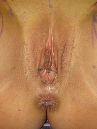 30 Year Old Female Treated with Labiaplasty