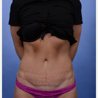 Tummy Tuck after 3052339