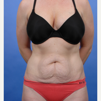 Tummy Tuck before 3052339