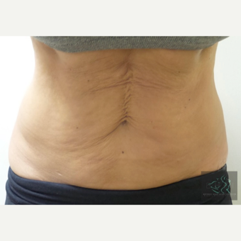 35-44 year old woman treated with Ultherapy before 2882368