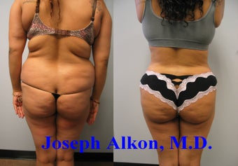 Liposuction and BBL before 1452507