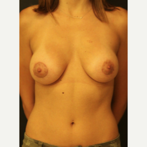 25-34 year old woman treated with Breast Augmentation after 3731793