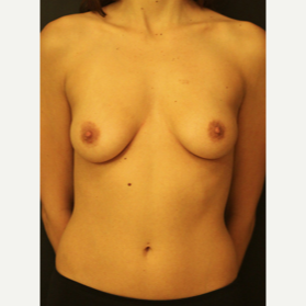 25-34 year old woman treated with Breast Augmentation before 3731793