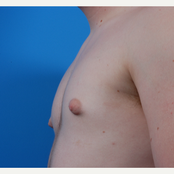 18-24 year old man treated with Male Breast Reduction before 3424030