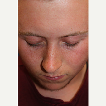 18-24 year old man treated with Rhinoplasty before 3644948