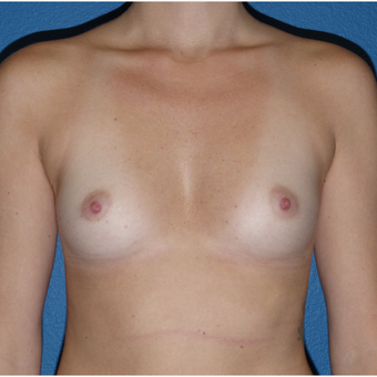 18-24 year old woman treated with Breast Augmentation before 3081336