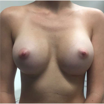18-24 year old woman treated with Breast Augmentation after 3081336