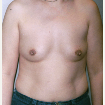 45-54 year old woman treated with Breast Augmentation before 3154002