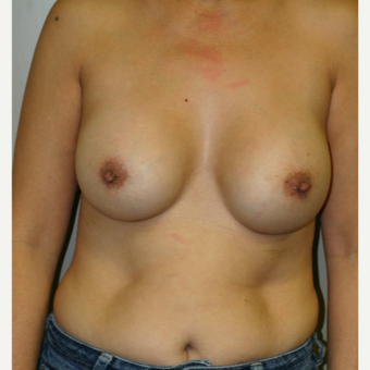 45-54 year old woman treated with Breast Augmentation after 3154002