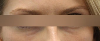 Restylane under eye treatment after 1184722
