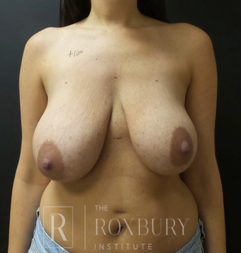 35-44 year old woman treated with Breast Lift before 3844332