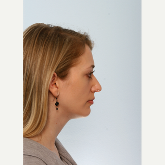 Chin Implant before 3590060