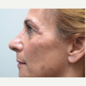 45-54 year old woman treated with Rhinoplasty after 3747724