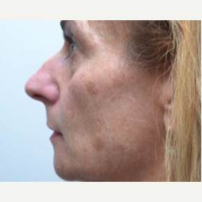 45-54 year old woman treated with Rhinoplasty before 3747724