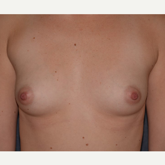 25-34 year old woman treated with Breast Implants before 3455339
