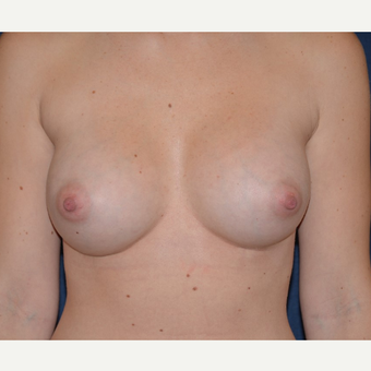 25-34 year old woman treated with Breast Implants after 3455339