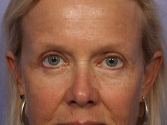 Eyelid Surgery after 280868