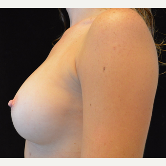 25-34 year old woman treated with Breast Augmentation after 3686966