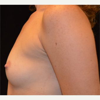 25-34 year old woman treated with Breast Augmentation before 3686966