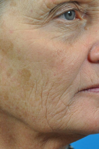 CO2 Full Face Laser Resurfacing before 1497576