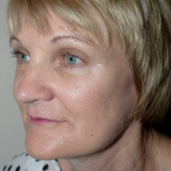 55-64 year old woman treated with Facelift after 3095783