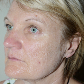 55-64 year old woman treated with Facelift before 3095783